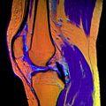 12 Knee MRI T1W TSE R T2W TSE G PDW DR TSE B.jpg