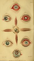 A synopsis of the diseases of the eye, and their treatment - to which are prefixed, a short anatomical description and a sketch of the physiology of that organ (1821) (14779667234).jpg
