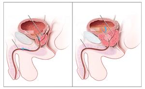 próstata a la izquierda