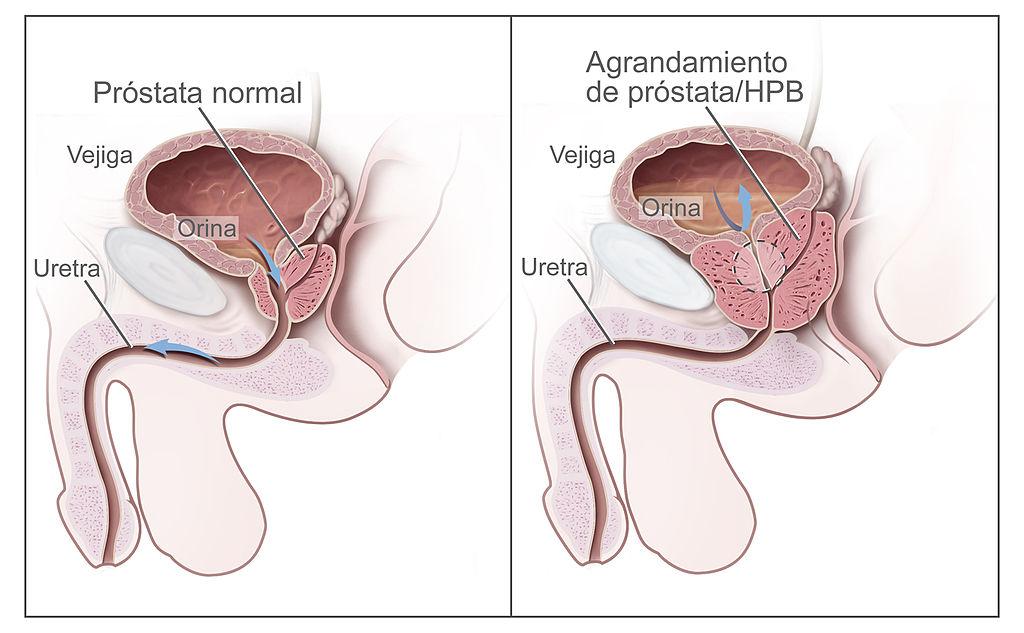 Filebenign Prostatic Hyperplasia Spanishg Wikimedia Commons