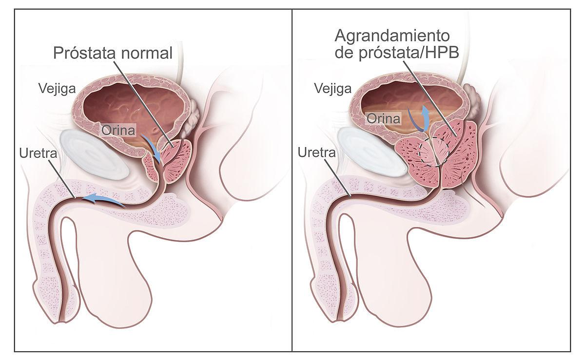 agrandamiento de la próstata oclusiva