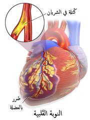 يحدث احتشاء عضلة القلب (أو النوبة القلبية) عندما تتراكم اللويحات في جدران الشرايين ببطء على البطانة الداخلية للشريان التاجي ثم تتمزق فجأة، مما يسبب في تشكيل خثرة كارثية، تسد تماما الشريان وتمنع تدفق الدم فى اتجاه مصبّ الشريان.