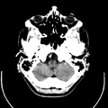 Computed tomography of human brain (4).png