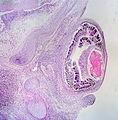 Eye and Orbit of Human Embryo (3459323897).jpg