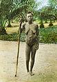 Female atrocity victim, Congo, ca. 1900-1915 (IMP-CSCNWW33-OS10-22).jpg
