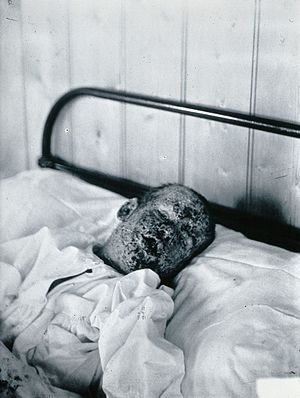 Eradication of infectious diseases - A child suffering from smallpox. In 1979, the World Health Organization announced the global eradication of smallpox. It is the only human disease to be eradicated worldwide.