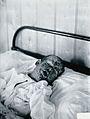 Gloucester smallpox epidemic, 1896; Henry Wicklin, aged 6 Wellcome V0031456.jpg