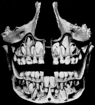 Deciduous teeth - A cross-section of a permanent teeth located above and below the deciduous teeth prior to exfoliation. The deciduous mandibular central incisors have already been exfoliated