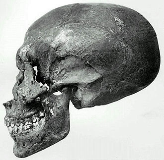 Smenkhkare - The skull of the KV55 mummy, believed to be Smenkhkare.