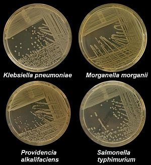 Medical microbiology - Four nutrient agar plates growing colonies of common Gram negative bacteria.