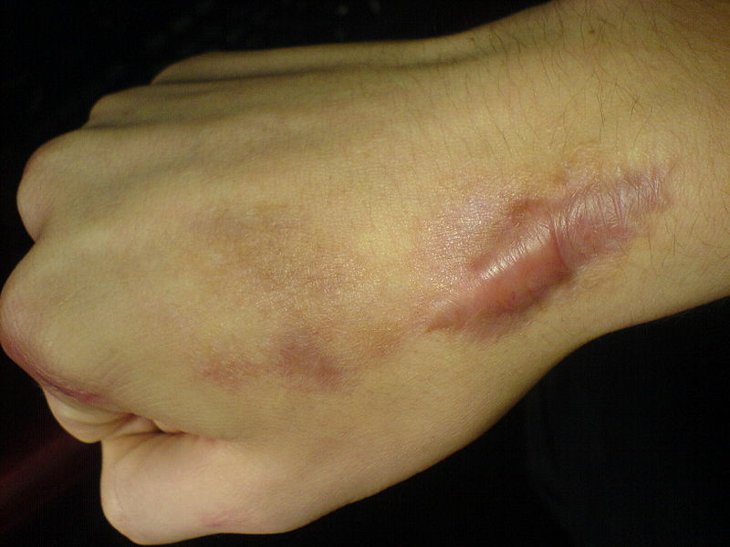 Keloids And Hypertrophic Scars - American Osteopathic ...