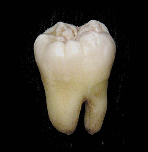 Molar (tooth) - A lower wisdom tooth after extraction.