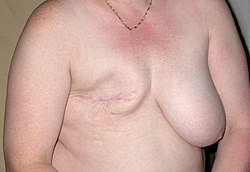 meaning of mastectomy
