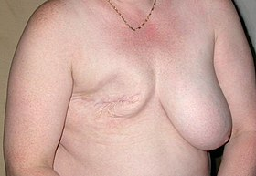 Mastectomie 02.jpg