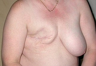 Mastectomy surgical removal of one or both breasts