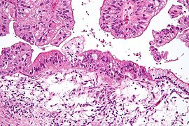 Mucinous lmp ovarian tumour intermed mag.jpg
