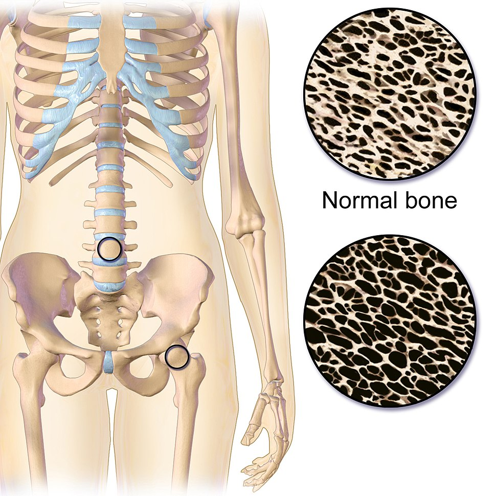 Osteoporosis Effect and Locations