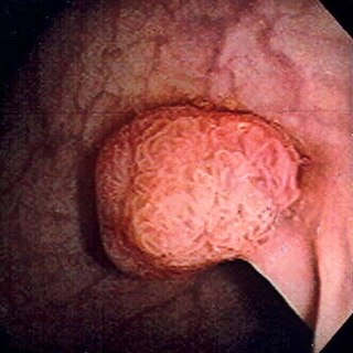 Colorectal polyp polyp that involves the colon