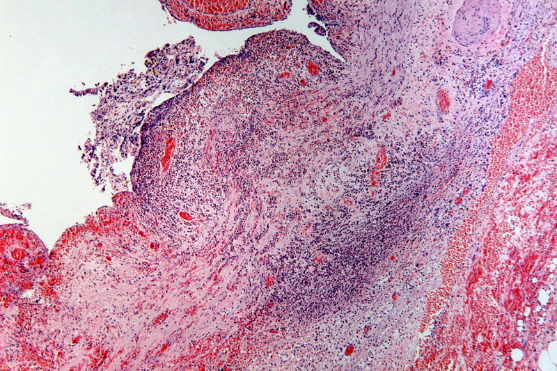 Datei:Severe acute ulcerated and hemorrhagic cholecystitis, HE 9.JPG