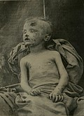 Seorang anak laki-laki yang menjadi korban pelecehan seksual. Dipublikasikan pada tanggal 1 Februari 1910.