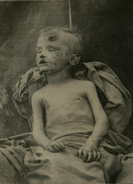File:Sexually abused boy (ca 1910).jpg