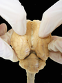 Sheep Brain Dissection 2 - black background.png