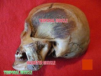 Temporal muscle - Image: Slide 8por