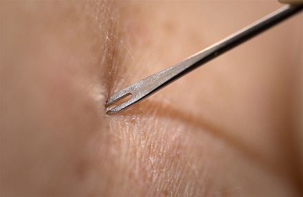 A demonstration by medical personnel on use of a bifurcated needle to deliver the smallpox vaccine, 2002. Smallpox vaccine injection.jpg