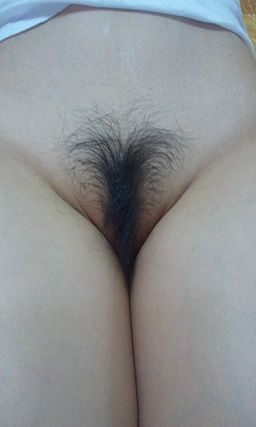 Unshaved female genitalia.