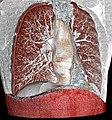 3D CT of pulmonary circulation.jpg