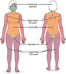 Burns: MedlinePlus Medical Encyclopedia