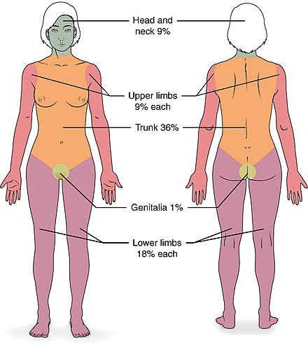 Burn severity is determined through, among other things, the size of the skin affected. The image shows the makeup of different body parts, to help assess burn size. 513 Degree of burns.jpg