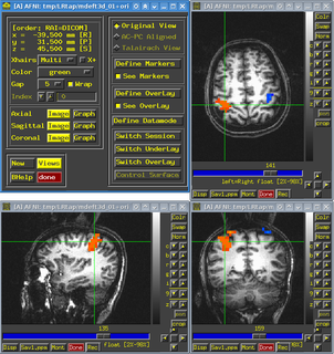 Analysis of Functional NeuroImages