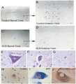 ALS loss of neurons and oher often inclusions.png