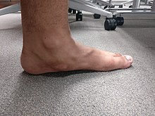 6b5e2b5950067 Acquired Flat foot deformity with clinical soft tissue swelling.