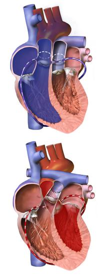 Arterial switch operation - Wikipedia