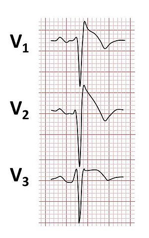 Brugada syndrome ECGs.jpg