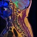Cervical spine MRI T1FSE T2frFSE STIR 03.jpg