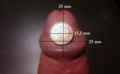 Flaccid penis glans with measurements.png