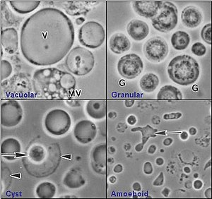 Four common forms of Blastocystis hominis Valzn.jpg