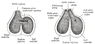 Aorticopulmonary septum - Diagrams to show the development of the septum of the aortic bulb and of the ventricles.