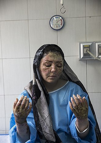 Acid throwing - An Iranian acid-attacked woman under treatment in Tehran, pictured on April 2018.