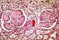 Nodular glomerulosclerosis.jpeg
