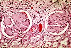 Diabetic nephropathy - Wikipedia, the free encyclopedia