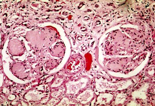 malattia renale e disfunzione erettile