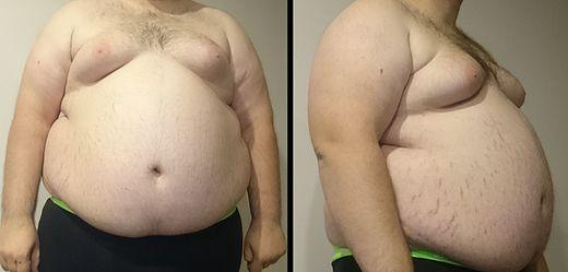 Obesity6.JPG, From WikimediaPhotos