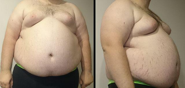 Obese man By FatM1ke (Central_Obesity_011.jpg Central_Obesity_008.jpg) [Public domain], via Wikimedia Commons