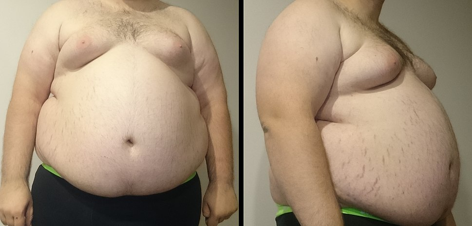 "A front and side view of a ""super obese"" male torso. Stretch marks of the skin are visible along with gynecomastia."