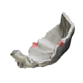 Occipital bone Lateral angle02.png