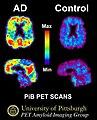 PiB PET Images AD.jpg